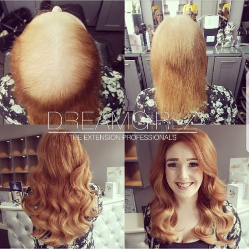 Hair loss consultation dreamgirlz hair extensions pmusecretfo Image collections