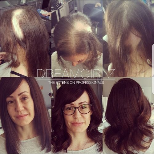 Hair loss dreamgirlz hair extensions pmusecretfo Image collections
